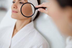 Wybroczyny na twarzy – wygląd, przyczyny, rozpoznanie i leczenie