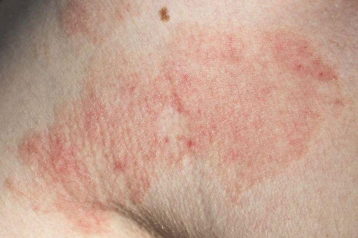 Atopowe zapalenie skóry na zdjęciach