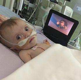 Najmłodsza pacjentka po podwójnym przeszczepie płuc na świecie