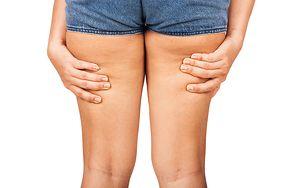 Produkty, które powodują cellulit. Sprawdź, co warto wyeliminować ze swojej diety