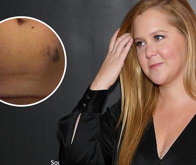 Amy Schumer chce mieć drugie dziecko