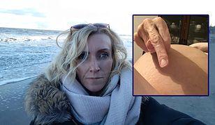 Monika Baumann zdecydowała się odpowiedzieć Joannie Lichockiej. Nigdy wcześniej nie pokazywała swojego brzucha, w którym rośnie nowotwór