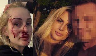 26-letnia Katarzyna Dziedzic postanowiła pokazać w mediach społecznościowych, jak pobił ją były partner.