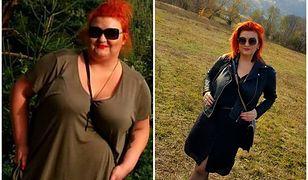 Anna przed i po operacji zmniejszenia żołądka
