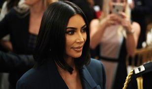 Kim Kardashian maskuje łuszczycę. Pokazała, jak walczy ze schorzeniem