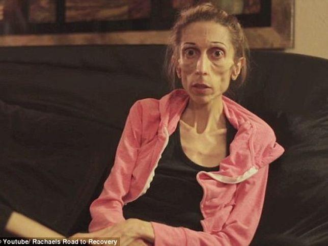 Chora na anoreksję kobieta wysyła w świat wołanie o pomoc