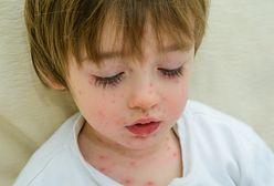Myślała, że syn ma alergię. Szybka reakcja uratowała jego zdrowie