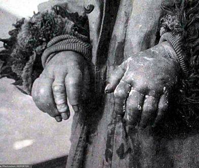 Ofiara eksperymentów w Jednostce 731