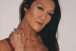 Ma zespół Ehlersa-Danlosa. Sara Geurts poznała diagnozę w wieku 10 lat