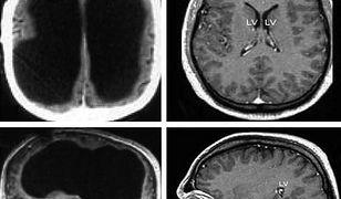 Wynik badania mózgu urzędnika