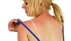 Naturalne remedia na poparzenia i otarcia