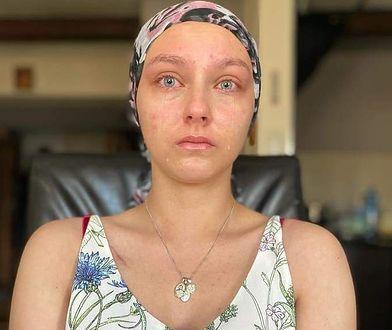 Julia Kuczała walczy o życie. Potrzebuje 8 mln zł na leczenie