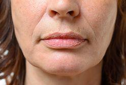 Czym są zmarszczki palacza? Jak pozbyć się zmarszczek wokół ust?