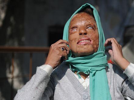 """Kobieta oblana kwasem wygrała główną nagrodę w indyjskim odpowiedniku """"Milionerów"""""""