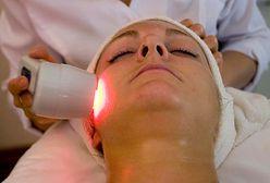 Laserowe zamykanie naczynek - sposób na rumień i pajączki na twarzy