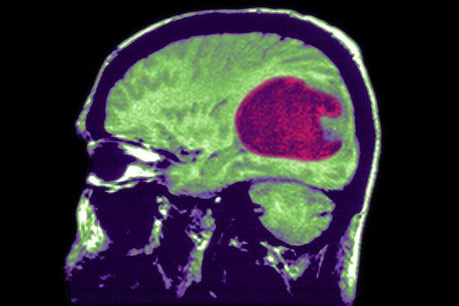 Dwukrotny wzrost liczby nowotworów mózgu. Naukowcy sądzą, że znają winowajcę