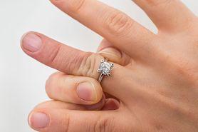 Sprawdź, dlaczego zdejmować biżuterię w ciąży. Unikniesz straty obrączki