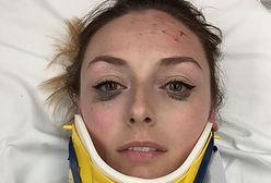 O jej selfie po wypadku mówią wszyscy. Przez jeden szczegół