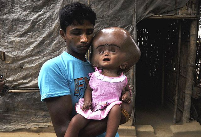 1,5-roczna Roona Begum cierpi na wodogłowie