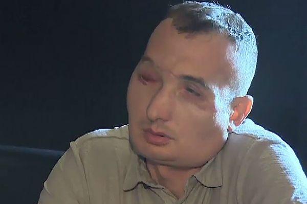 Mężczyzna z przeszczepioną twarzą zbiera na rehabilitację