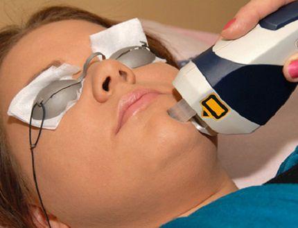 ABC laseroterapii, czyli fakty i mity na temat zabiegów laserowych