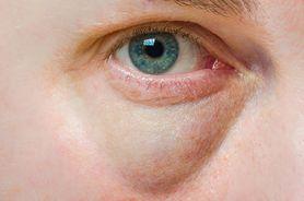 Choroby, które objawiają się workami pod oczami. Sprawdzone sposoby na worki pod oczami