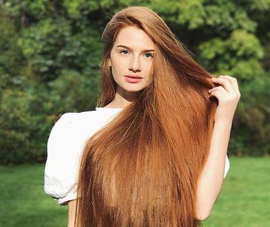 Anastasiya Sidorova wygrała z łysieniem plackowatym