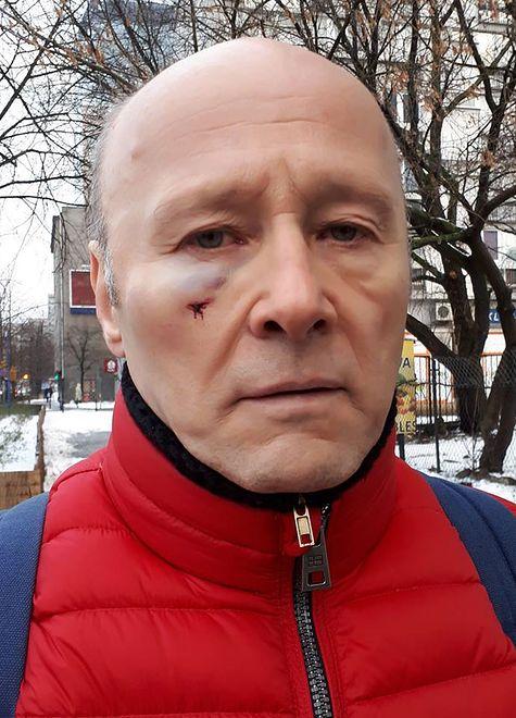 Aktor został w centrum Warszawy zwyzywany i uderzony