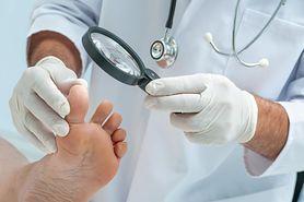 Grzybica stóp - rodzaje, przyczyny, objawy, diagnostyka, leczenie