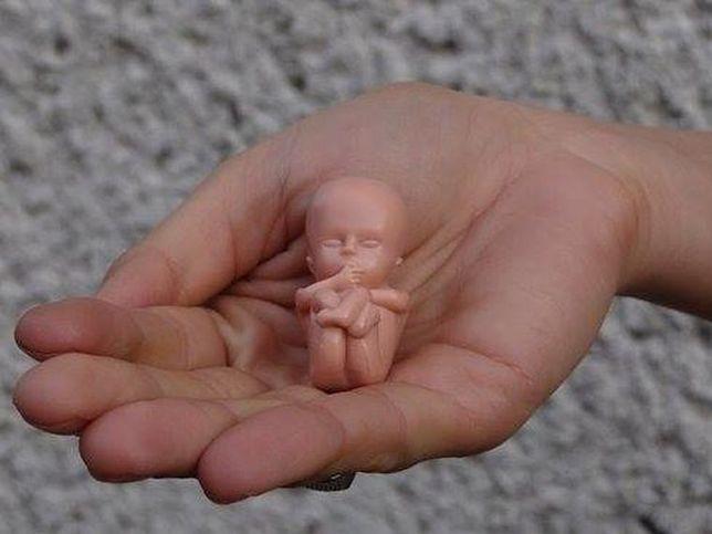 """Aborcja to """"wyciąganie dzieci odkurzaczem z brzucha"""". Rodzice oburzeni zachowaniem katechetów"""