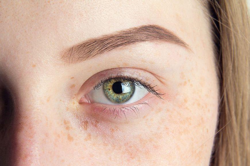 Rozjaśnianie przebarwień skóry