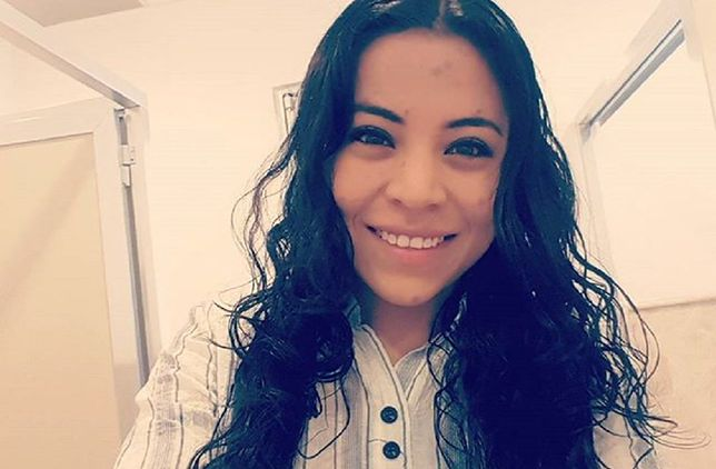 Lorena nie wygląda jak typowa 24-latka. Jej ciało pokrywa ogromne znamię