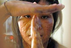 Okaleczone i oszpecone – życie kobiet oblanych kwasem