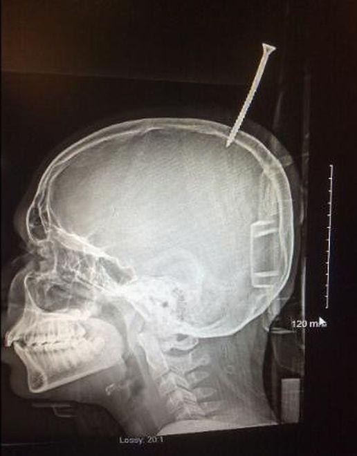 13-latek cudem przeżył. Śruba niemal przebiła mu mózg