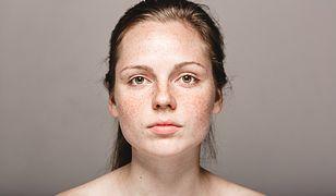 Ostuda przejawia się brązowo-szarymi przebarwieniami skórnymi