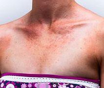 7 części ciała, które zdradzają twój wiek
