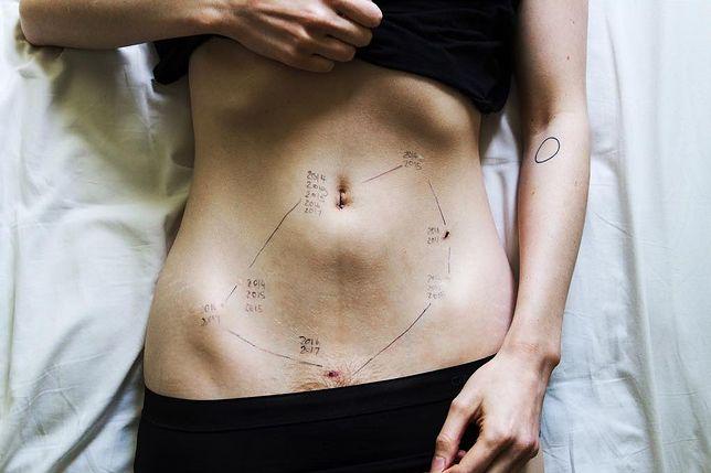Zdjęcie brzucha Georgie wstrząsnęło internautami