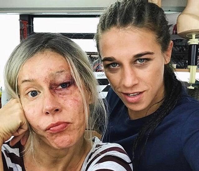 """""""Pobita"""" Katarzyna Warnke. Pokazała się ze znaną mistrzynią MMA"""