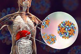 Wirusowe zapalenie wątroby - cichy zabójca, rodzaje, leczenie, szczepionka