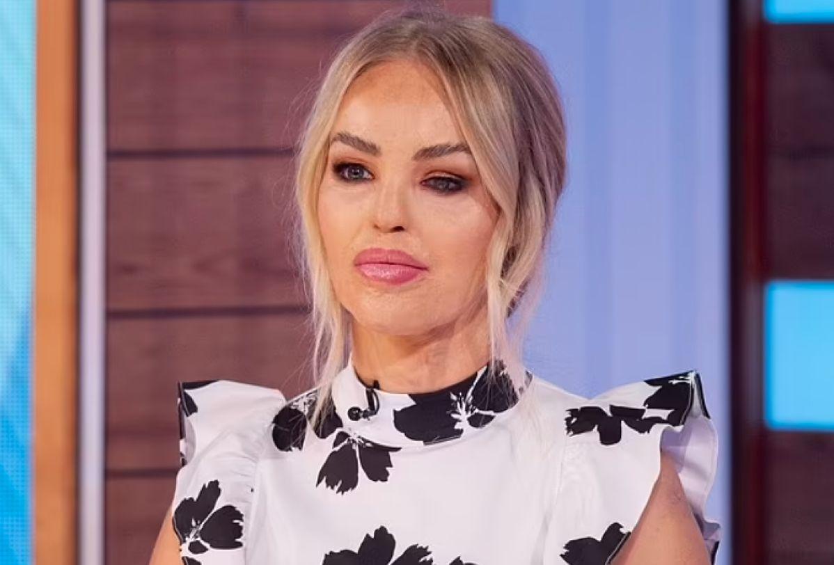 Katie Piper jest m.in. prezenterką w brytyjskiej telewizji