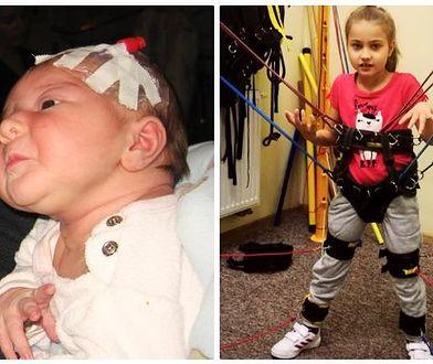 Dorotka ma 8 lat i cierpi na zespół Retta. To bardzo rzadka choroba