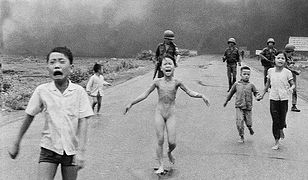 Stała się symbolem ofiar wojny w Wietnamie. Przez latach żyła z koszmarnym bólem