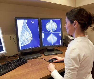 Kobiety bezpłatnie mogą skorzystać z konsultacji i mammografii w Katowicach