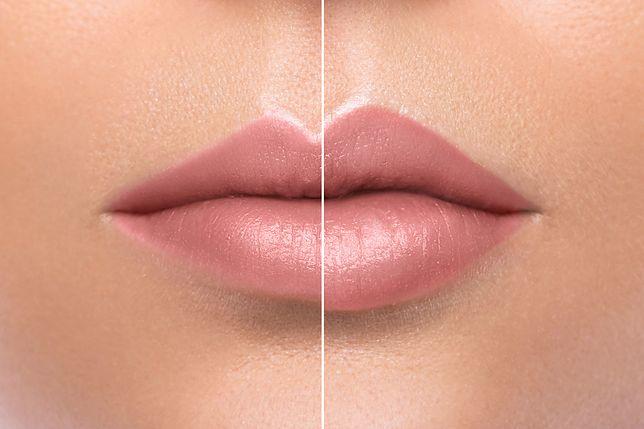 Wypełnianie ust kwasem hialuronowym to popularny zabieg medycyny estetycznej.