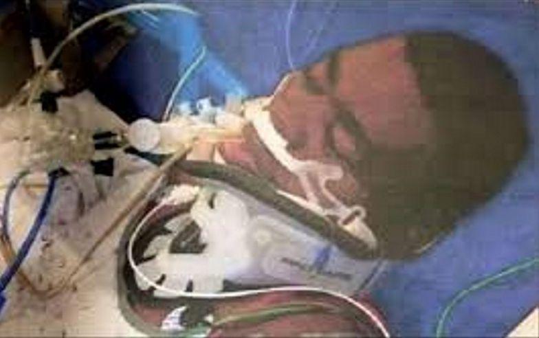 Fatalny błąd anestezjologa. Znany piłkarz od 39 lat jest w śpiączce