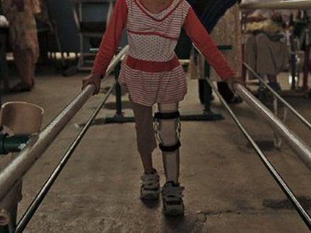 Amputowano jej nogę, żeby nadal mogła tańczyć