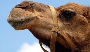 """Wielbłądy są """"skarbem narodowym Arabii Saudyjskiej"""". Na nich najczęściej wykonuje się operacje plastyczne"""