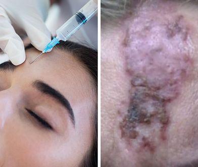 Pani Marta po zabiegu musi zmagać się z martwicą skóry.
