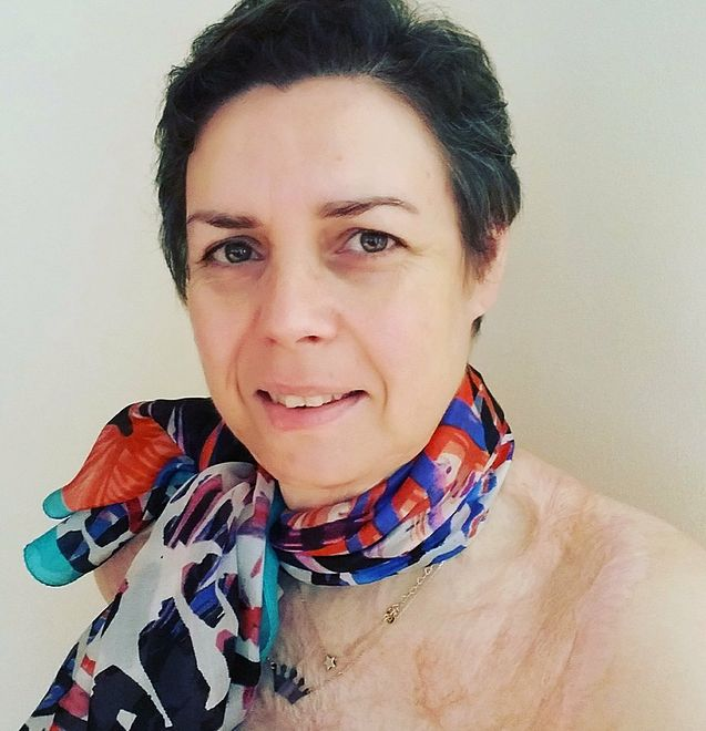 Jolanta Golianek - założycielka Fundacji Poparzeni, która pomaga osobom po ciężkich wypadkach
