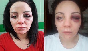 Kobieta opublikowała zdjęcia twarzy po pobiciu